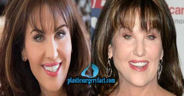 Robin Mcgraw Plastic Surgery Facelifts Before Amp After