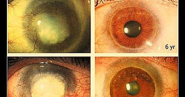 زرع خلايا جذعية لقرنية العين Youtube The Originals
