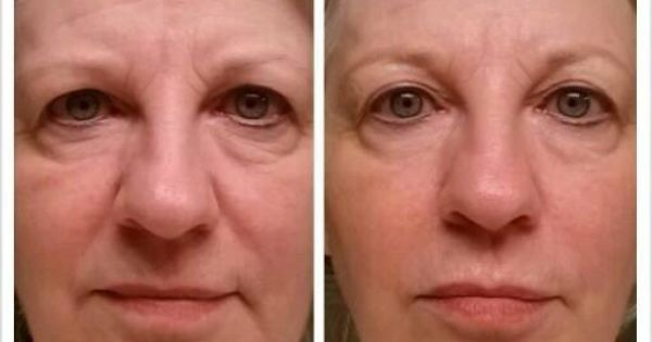 Tightens Facial 99