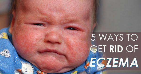 5 Natural Ways To Treat Eczema Fitness Health