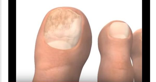 Cause Of Yellow Toenails - Several situations could cause ...