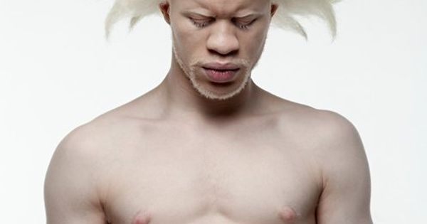 African-American Albino (stunning photo)