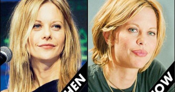 Meg Ryan Plastic Surgery Before And After Pictures
