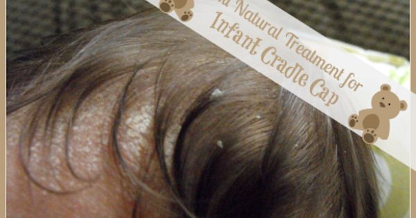 Natural Remedies Cradle Cap Coconut Oil