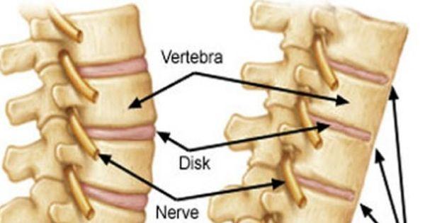 Ankylosing Spondylitis Arthritis In Axial Skeleton