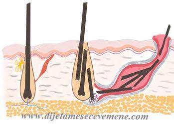 Urastaju Vam Dlake I To Jos U Predelu Trtice Ovo Stanje Moze Biti Puno Opasnije Nego Sto Mislite Ingrown Hair Laser Clinics Sinusitis