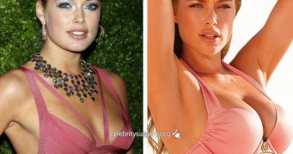 celebrity doutzen kroes before and after plastic surgery