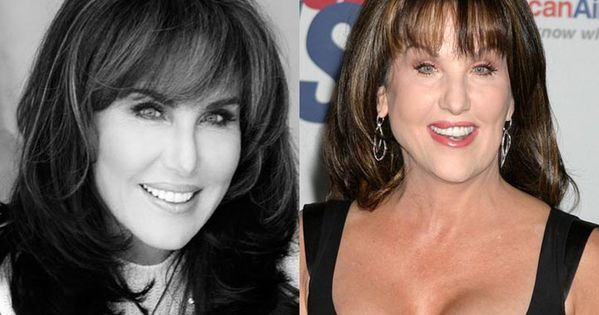 Robin Mcgraw Plastic Surgery Before And After Lip Jobs