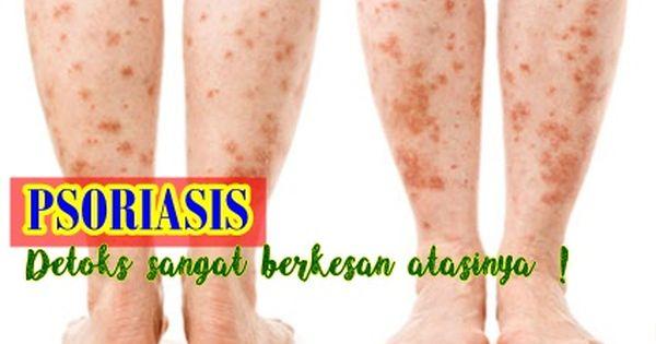 Psoriasis Detoks Sangat Berkesan Untuk Merawat Masalah Auto Imun Info Kesihatan Psoriasis Info