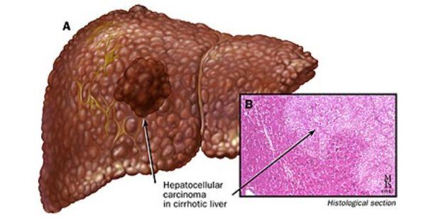 HEPATOCELLULAR CARCINOMA | Biliary Tract Pathology | Pinterest