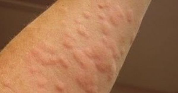 Home remedies for rash all over body