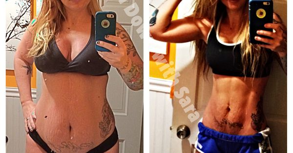 Abs and stretch marks almost 11 weeks postpartum after