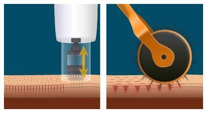 Pin On Micro Needling
