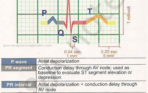 Electrocardiogram (ECG): Definition & Wave Types - Study.com