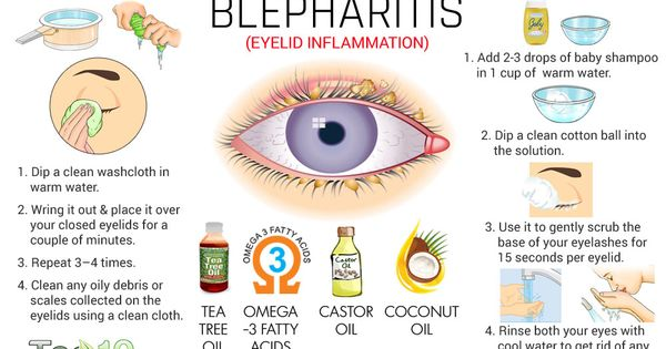 Home Remedies For Blepharitis Eyelid Inflammation Home