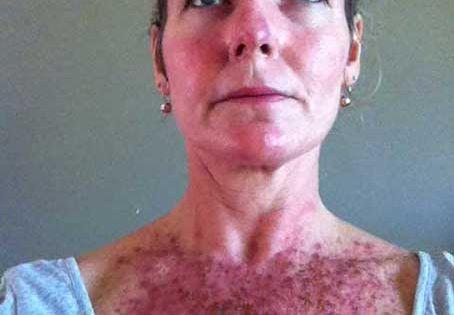 Efudex Treatment Blog - ImageStack   dermatology ...
