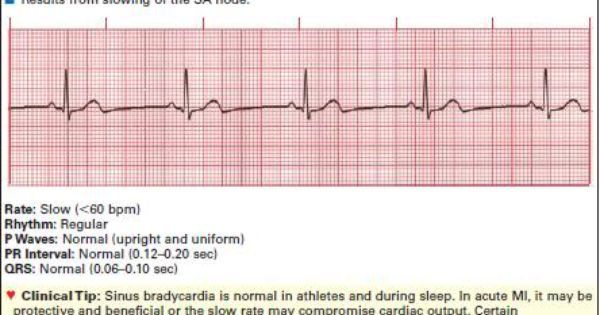 Bradycardia and sleep - Heart Disease - MedHelp