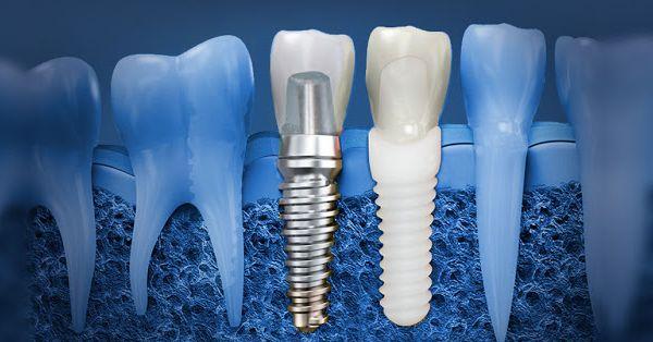 Dental implant in Melbourne