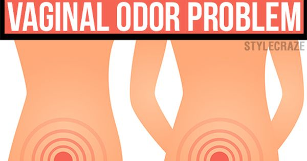 15 Tried Home Remedies for Eliminating Vaginal Odor