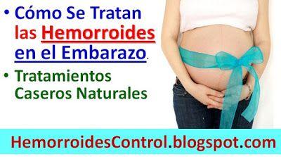 remedios naturales almorranas embarazo