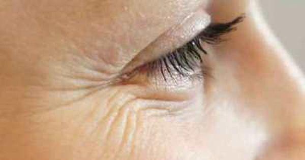 علاج تجاعيد العين بزيت الزيتون فعال و مجرب من أجل حل و علاج تجاعيد تحت و حول العين العديد من النساء و الرجال يعانون م Under Eye Wrinkles Rid Wrinkles Wrinkles