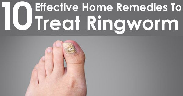 How To Get Rid of Ringworm Fast - How to Cure Ringworm ...
