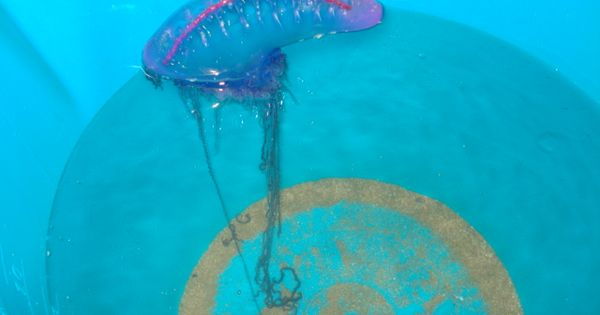 How To Treat A Jellyfish Sting Jellyfish Sting Portuguese Man O