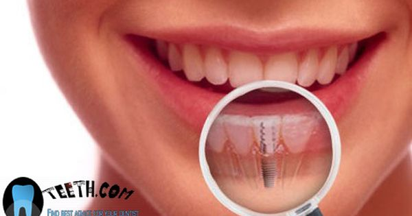 Oteeth Com Will Tell You About 24 Hour Dentist Affordable Dental