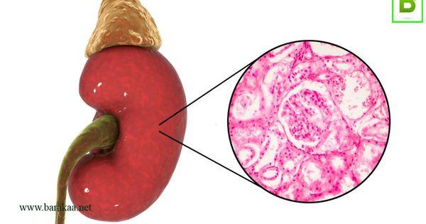 علاج رمل الكلى بالاعشاب تعرف علي علاج رمل الكلى بالاعشاب نهائيا بركة In 2020