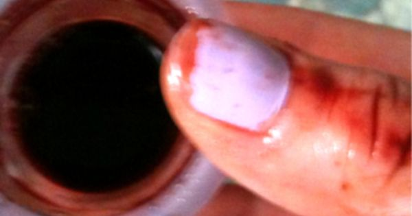 Menstrual cup blood | Menstrual: Menstrala | Pinterest