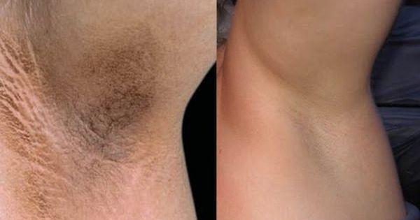 Natural Ways To Get White Skin