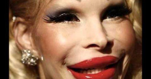 Botox Gone Wrong On Veengle A Little Unusual Pinterest