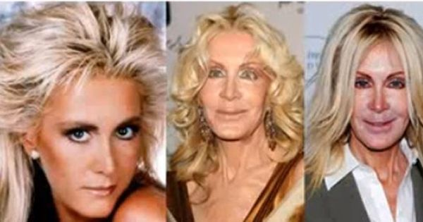 Joan Van Ark From The Tv Show Knots Landing A Dallas Spin