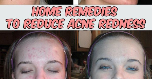 Natural remedies to reduce redness on face