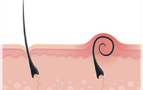 comment viter et traiter les poils incarn s comment. Black Bedroom Furniture Sets. Home Design Ideas