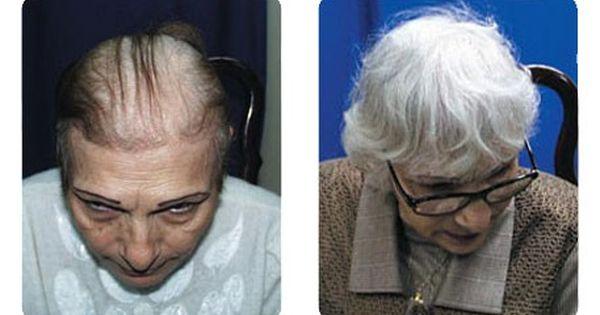 صور استعادة الشعر للنساء عيادة كوزمسيرج لزراعة الشعر في دبي