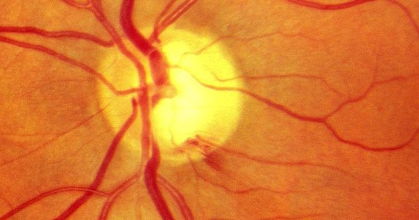 Optic nerve hemorrhage can be a sign of worsening glaucoma ...