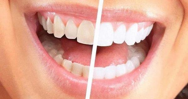Картинки по запросу чистка зубов у стоматолога