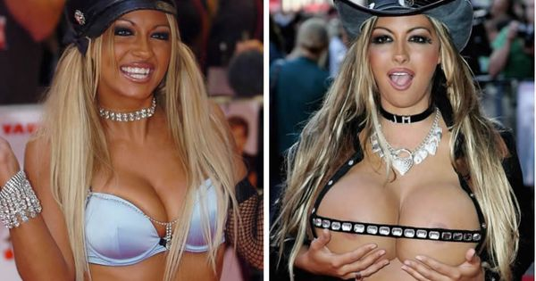 Most Extreme Celebrity Plastic Surgeries Who Gone Bad