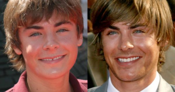 Zac Efron had a gap but through minimal orthodontic treatment he was able  to close and maintain the integrity of his initial smile. 17 Best images about Smile Makeovers on Pinterest   Smile