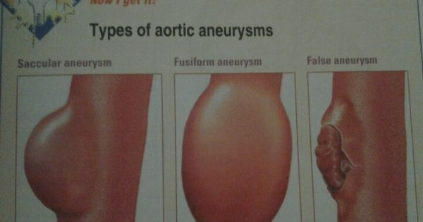 types of aortic aneurysms
