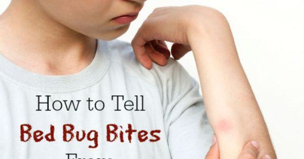 Chiggers Vs Bed Bugs 28 Images Chiggers What Do