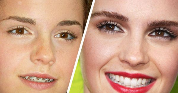 Famous Faces with Braces | Beautiful, Braces and Dr. who | 600 x 315 jpeg 29kB