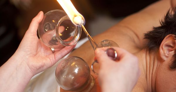Cupping Is Used Within The Traditional Chinese Medicine