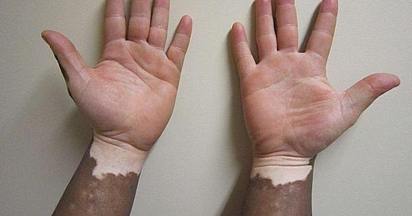 Vitiligo Associated With Lower Incidence Of Skin Cancers Vitiligo Cure Vitiligo Vitiligo Treatment