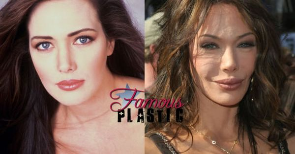 Hunter Tylo Plastic Surgery She Could Ve Aged So