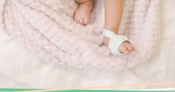 Smart Sock 2 Baby Monitor