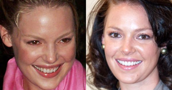 Katherine Heigl always has had a stunning smile but look how stunning she  looks with fresh pearly whites. 17 Best images about Celebrity Dental Makeovers on Pinterest
