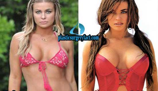 Carmen Electra Boob Job Before And After Photos Http