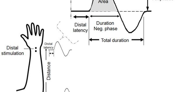 figure 5  parameters of a schematic cmap assessed in motor nerve conduction study